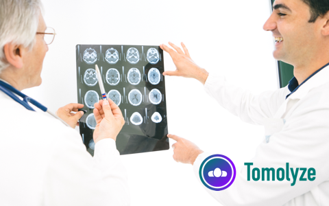 Tomolyze多美视医学影像报告软体